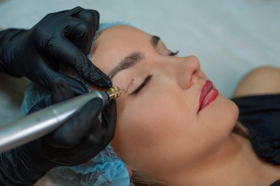 Augenlider straffen mit Plasmage